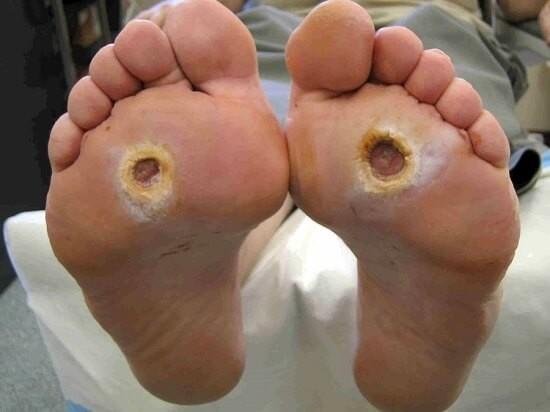 IZOBRAŽEVANJE: Oskrba diabetičnega stopala - Kremca
