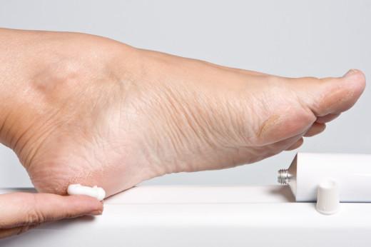 tezave stopal